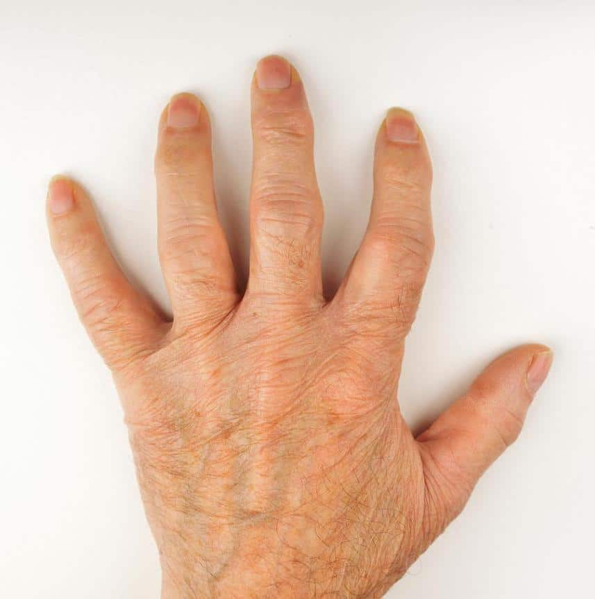 اثر شلغم در پیشگیری از آرتریت