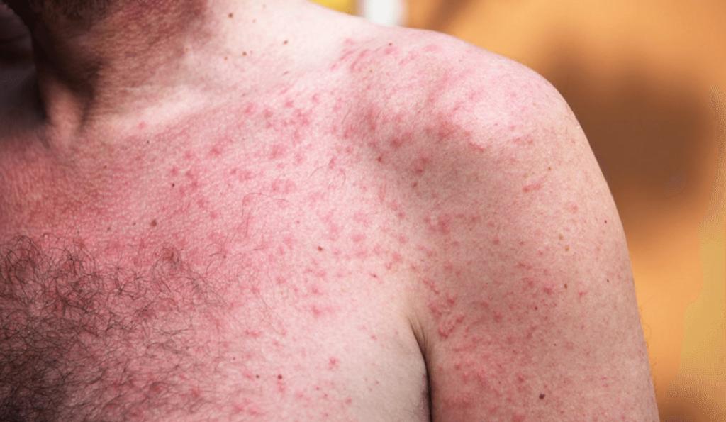 درمان جوشهای پوستی