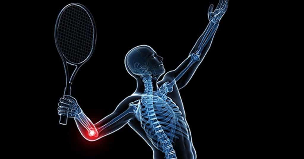 علت بیماری آرنج تنیسبازان