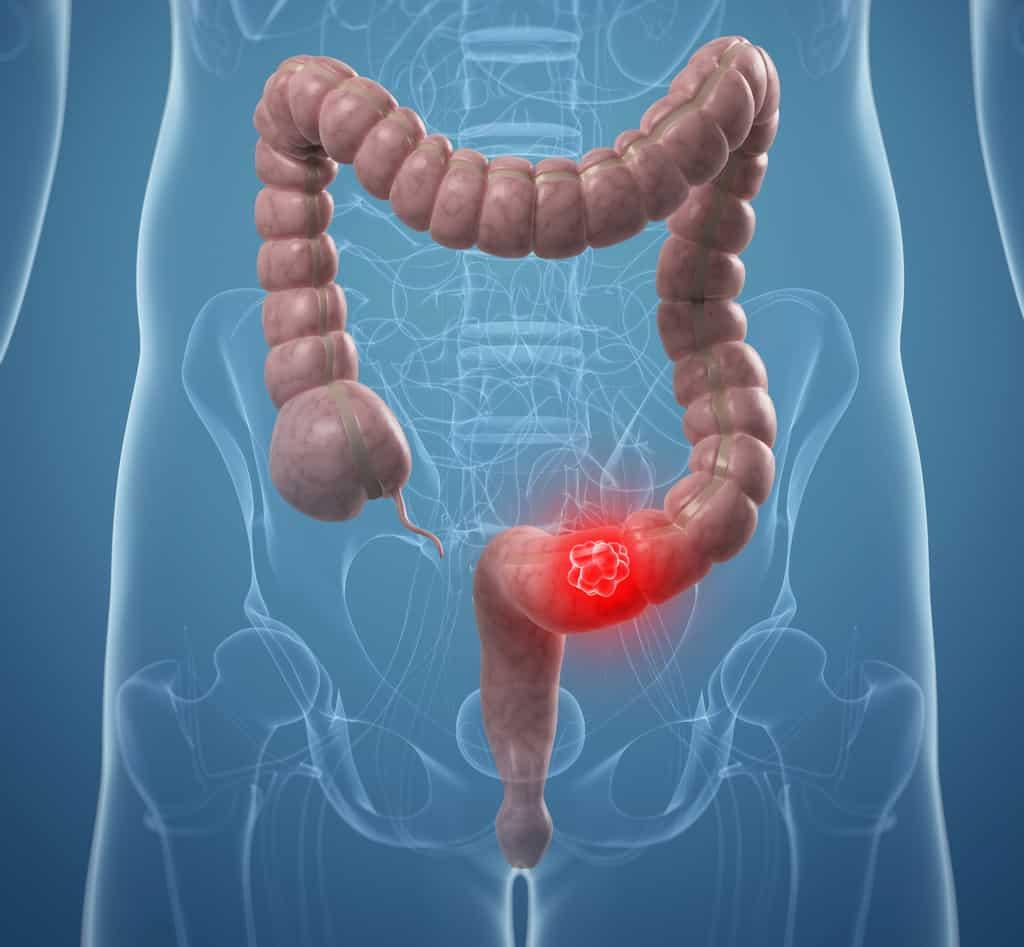 سرطان روده بزرگ : تعریف بیماری، عوامل ابتلا، علائم بیماری و پیشگیری و درمان آن