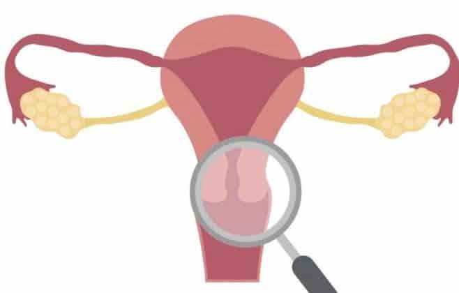 سرطان دهانه رحم ؛ علائم، تشخیص، درمان و پیشگیری