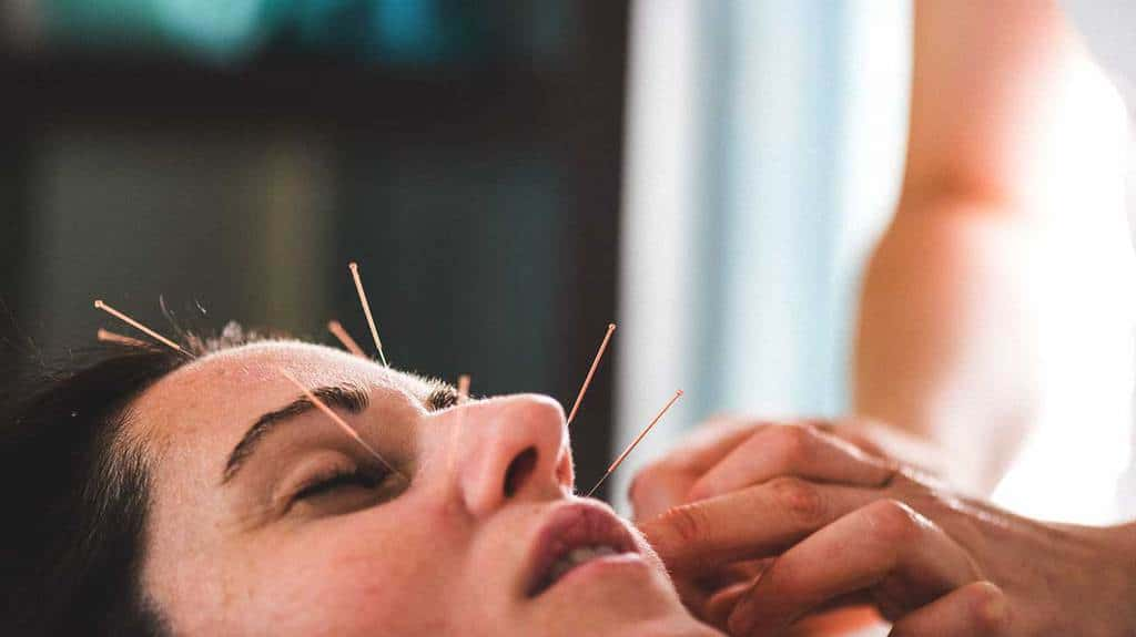 طب سوزنی صورت چگونه بر جوانسازی و زیبایی پوست موثر است؟