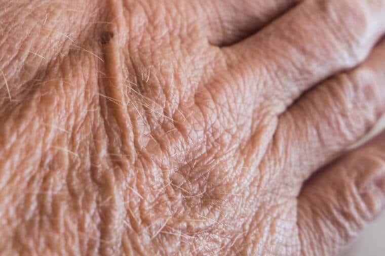 صاف شدن پوست پس از مرگ