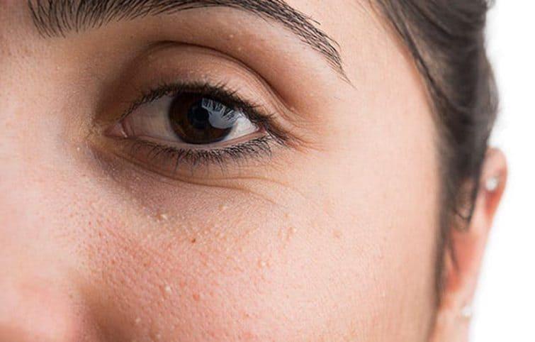 میلیا ، نقاط سفید روی پوست چرا به وجود میآیند؟ راه درمان آنها چیست؟