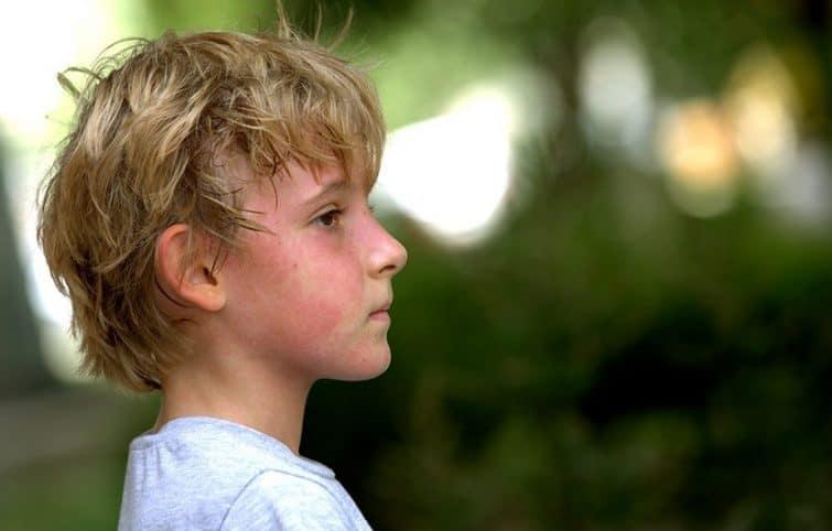 عارضه گرمازدگی چیست ؟ معرفی علائم، علل ایجاد، پیشگیری و درمان آن