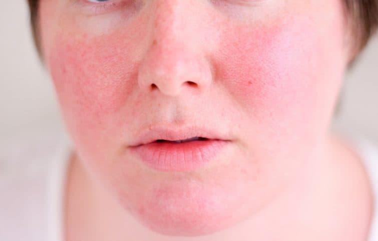 قرمزی پوست را چگونه و با چه روشهایی میتوان درمان کرد؟