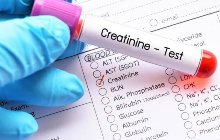تست کراتینین آزمایش خون به چه منظور انجام میشود و میزان نرمال آن چقدر است؟