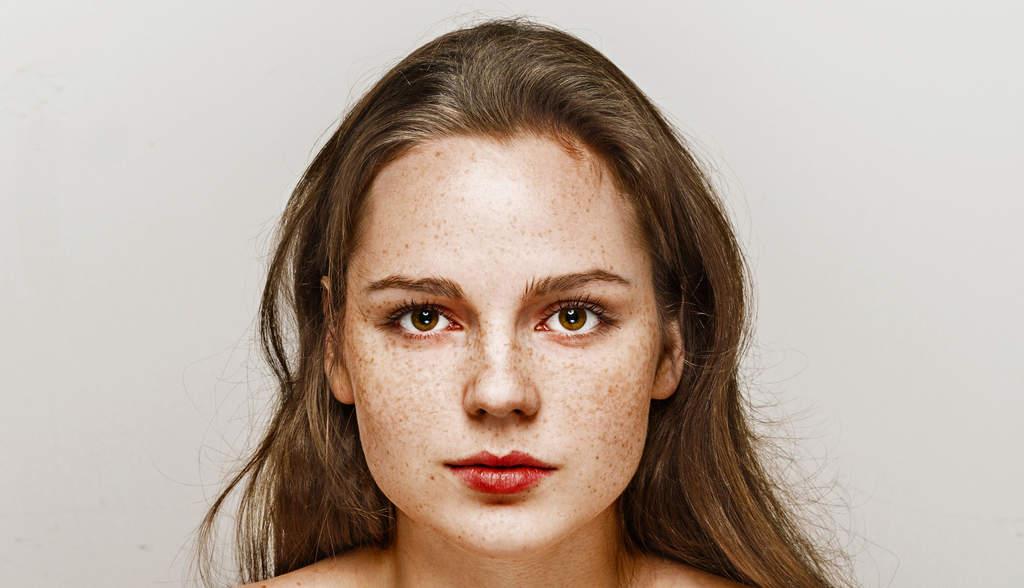 مراقبت از پوست دچار کک و مک