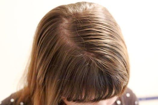 موهای نازک و روش صحیح مراقبت از آنها