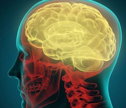 ام اس و ۵ چیز که با افزایش خطر مربوط به  این بیماری در ارتباط هستند