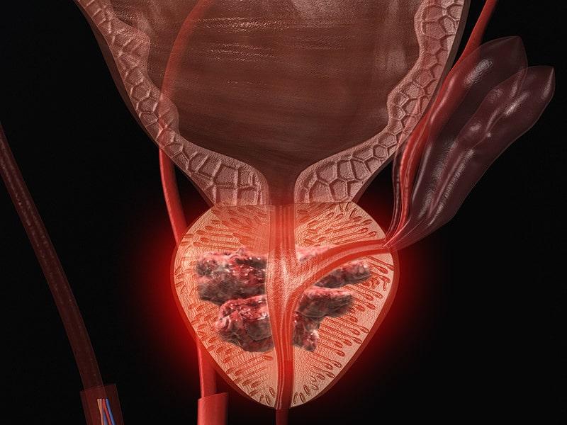 خواص پیاز در پیشگیری از سرطان پروستات
