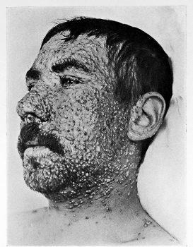 آبله: نگاهی جامع به سابقه تاریخی، نحوه انتقال و پیشگیری از این بیماری