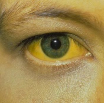 تب زرد (Yellow fever): راههای انتقال، علائم، پیشگیری و درمان بیماری