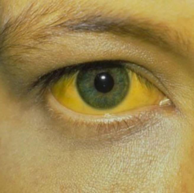 بیماری تب زرد