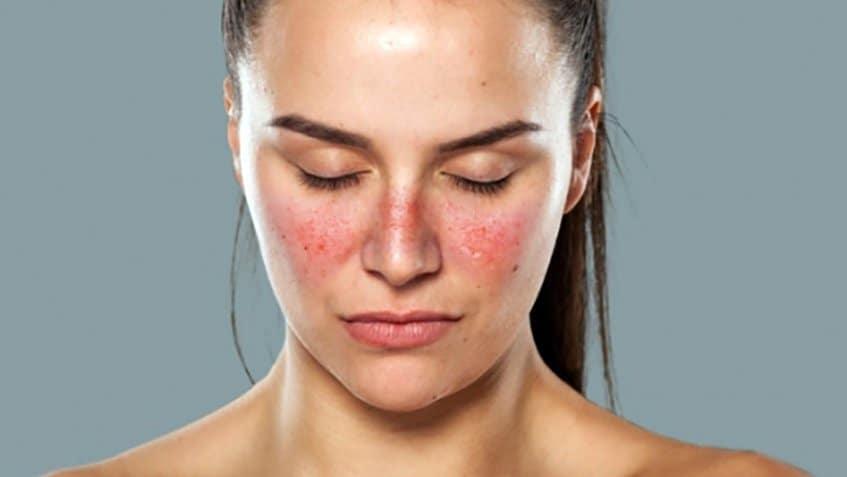 بیماری لوپوس عامل درد بدن
