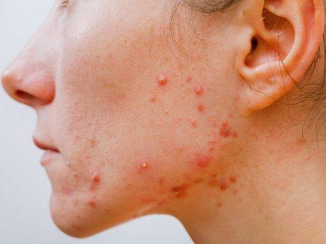 علائم آلرژی دارویی
