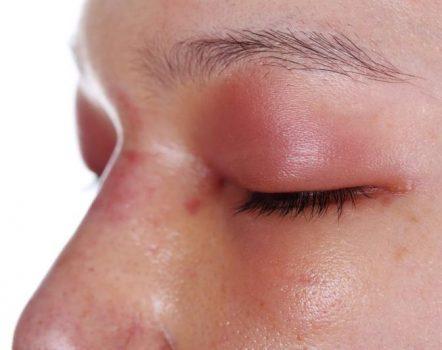 تورم پلک؛ دوازده دلیل و درمان آن