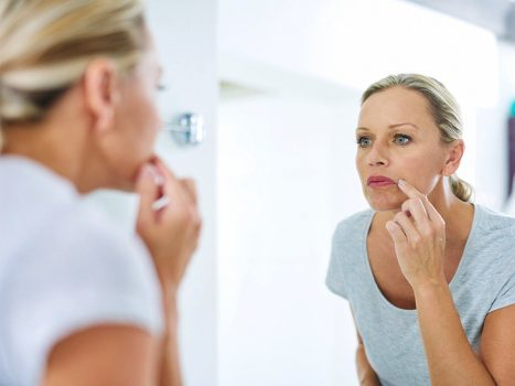 سوزش لبها گاهی اوقات نشانه بیماریهای جدی است