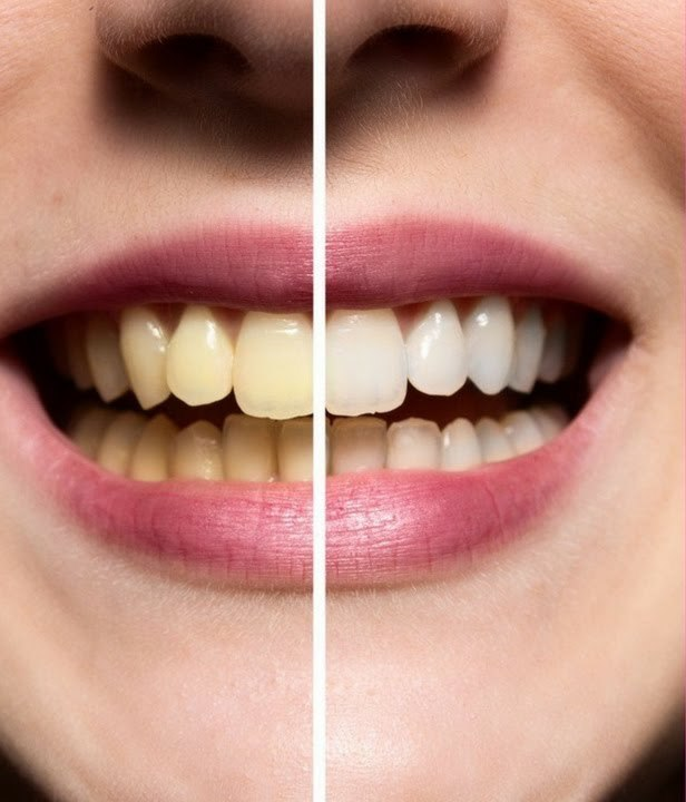 عارضه پلاک دندان