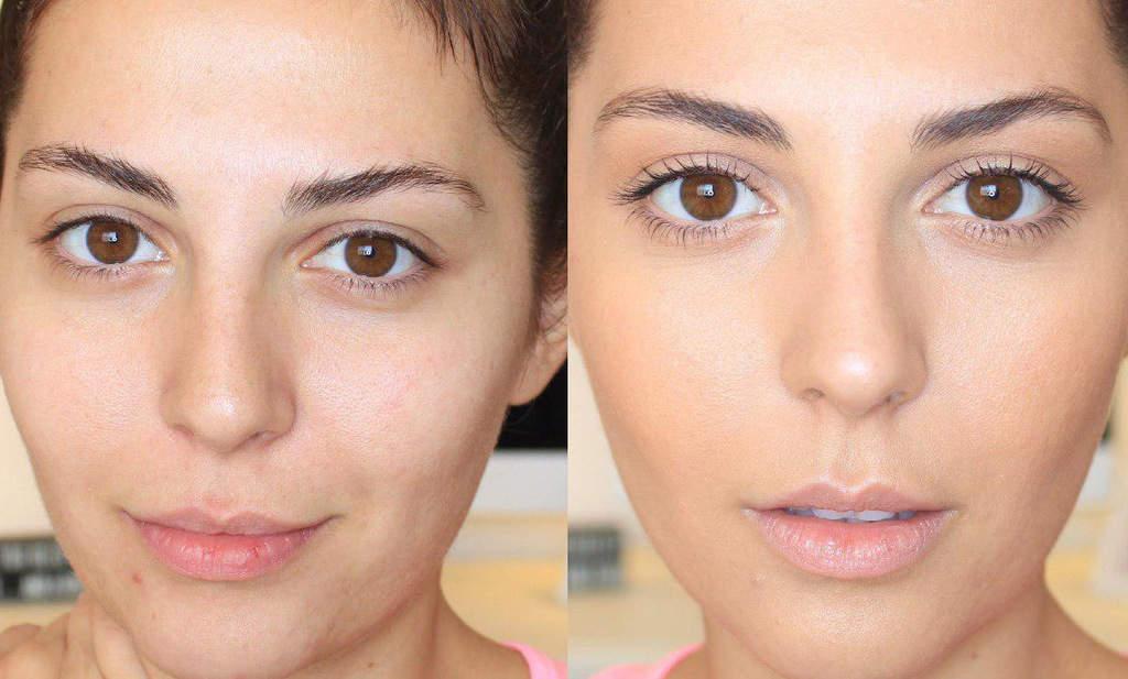 کوچک کردن روزنههای پوست