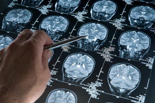تومور مغزی با ۸ نشانه خاموش که ممکن است به آن مبتلا شده باشید