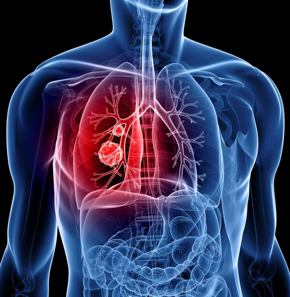 معرفی سرطان ریه