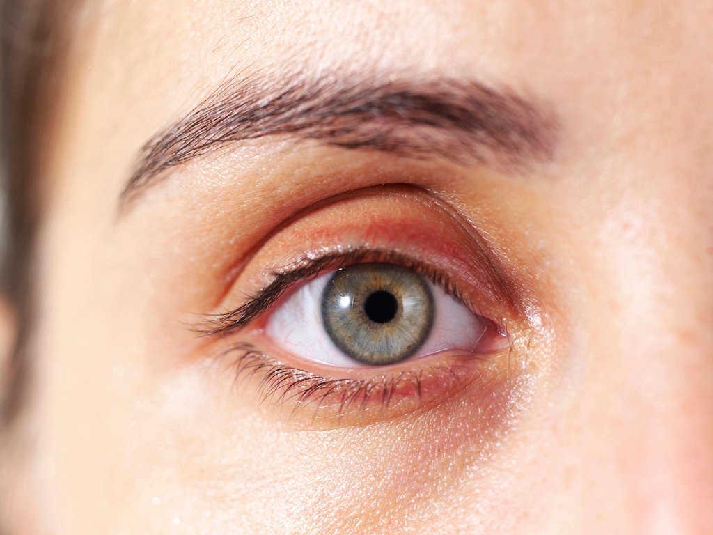 لکه زرد پشت پلک نشانههای بیماری روی صورت