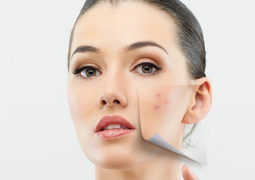 مشکل پوستی در هر نقطه از صورت شما چه میگوید؟ طب سنتی چینی پاسخ میدهد