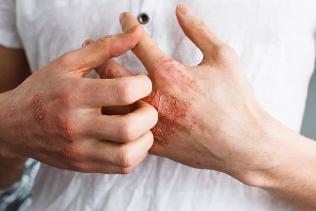 تیرگی زیر چشم بر اثر آلرژی