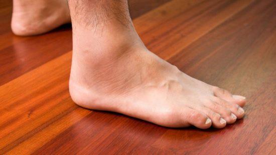 ورم پا چگونه و بر اثر چه عواملی بوجود میآید؟ بررسی ۱۳ علت بوجود آورنده
