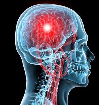 سکته مغزی و انواع آن، عوامل خطر و پیشگیری از این عارضه