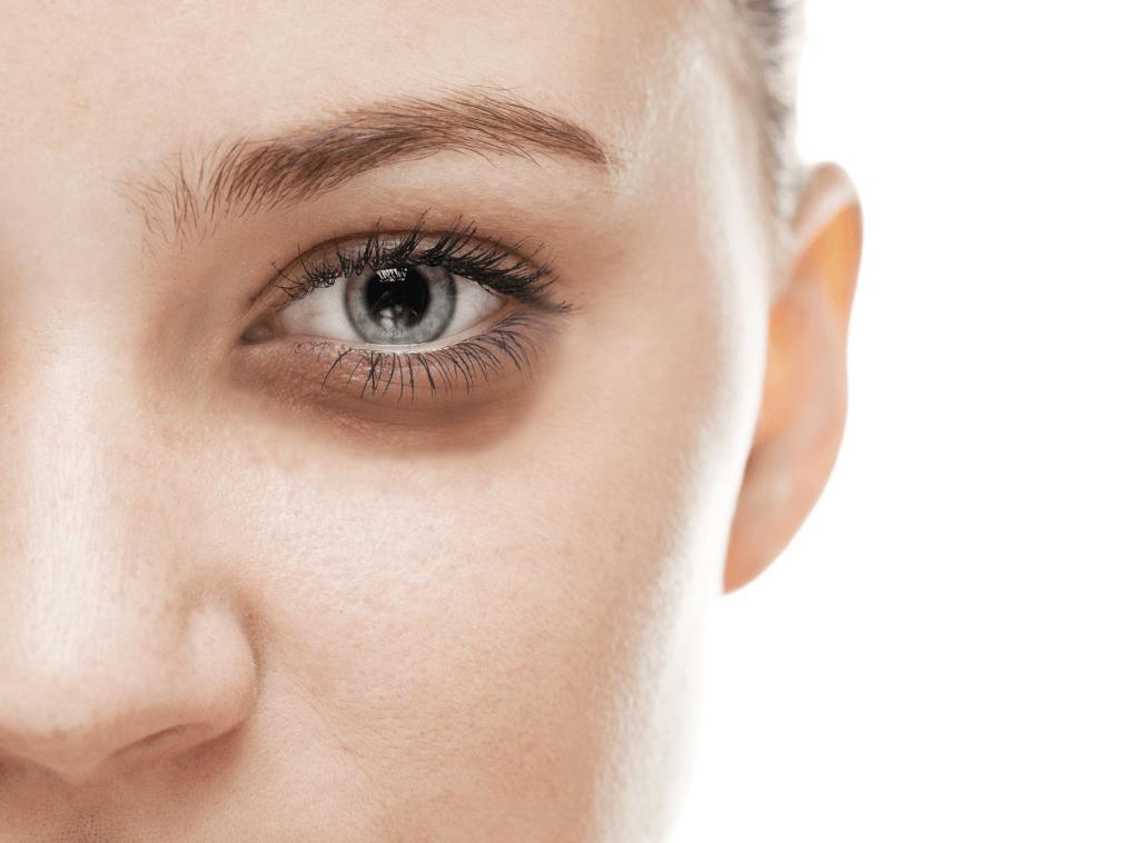 علتهای سیاهی زیر چشم