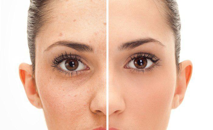 برطرف کردن آسیب پوستی