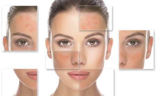 اسید لاکتیک و اثر جادویی آن در لایه برداری و جوانسازی پوست