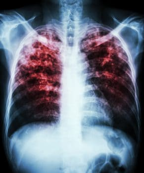 بیماری سل : علل، علائم ابتلای به بیماری، تشخیص و گزینههای درمان
