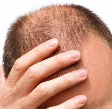 رشد مو و بهترین مواد غذایی از نظر متخصصان تغذیه برای این امر