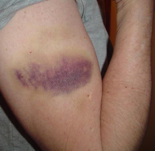 کبودی بدن و ۶ دلیل شگفتانگیز برای ابتلای همیشگی به این عارضه