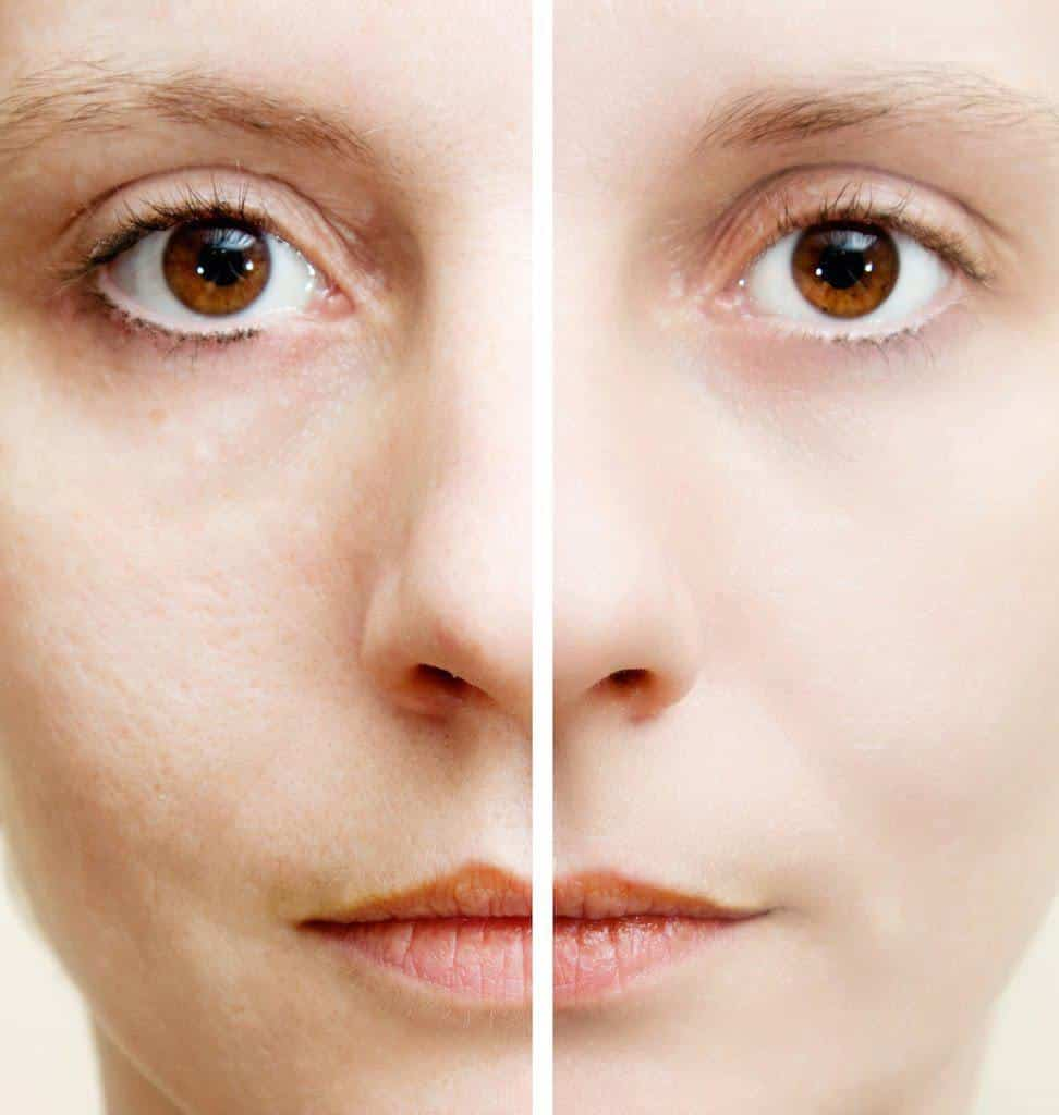 آیا محو کردن روزنههای پوستی ممکن است؟