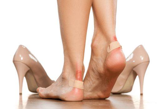 درمان تاول پا را با ۹ درمان خانگی سریع و موثر تجربه کنید