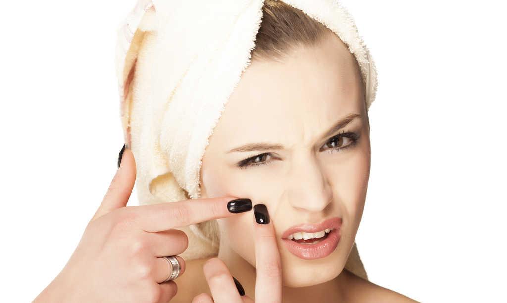 چند روش کاملا تایید شده و موثر برای درمان طبیعی آکنه