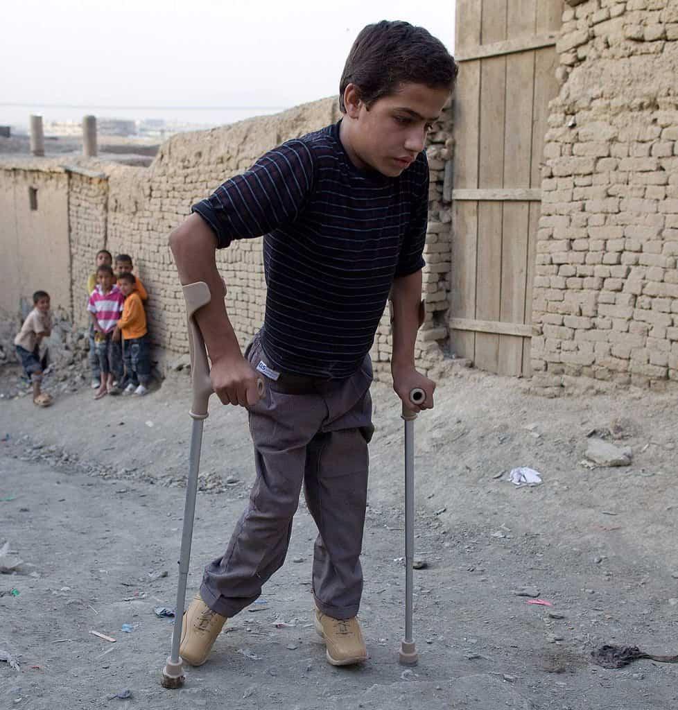 فلج اطفال (پولیو) و نگاهی به علائم ابتلا، تشخیص، پیشگیری و درمان این بیماری