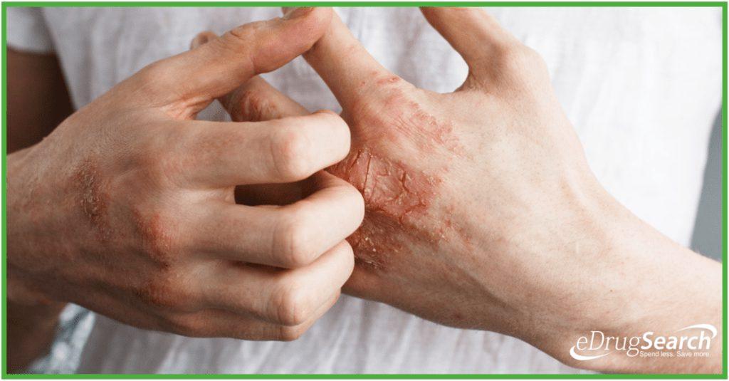 از داروی الوکون برای درمان وضعیتهای پوستی مانند واکنشهای آلرژیکی، اگزما و پسوریازیس استفاده میشود.