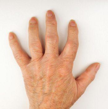 بیماری آرتریت و علائم ابتلا، علل ایجاد، تشخیص، پیشگیری و درمان