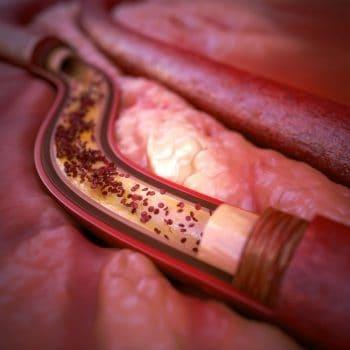 تصلب شرایین (Atherosclerosis) و علل ایجاد، علائم، تشخیص و پیشگیری