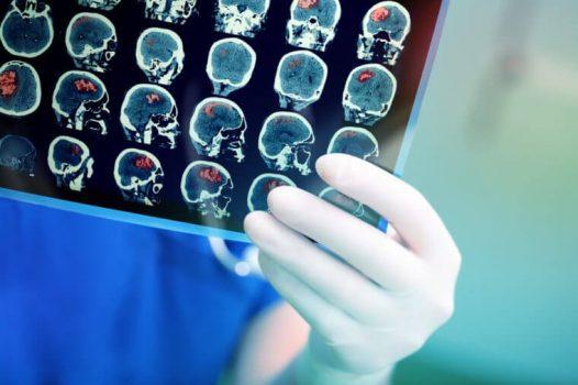 پیشگیری از آلزایمر با ۱۵ توصیه متخصصان مغز و اعصاب