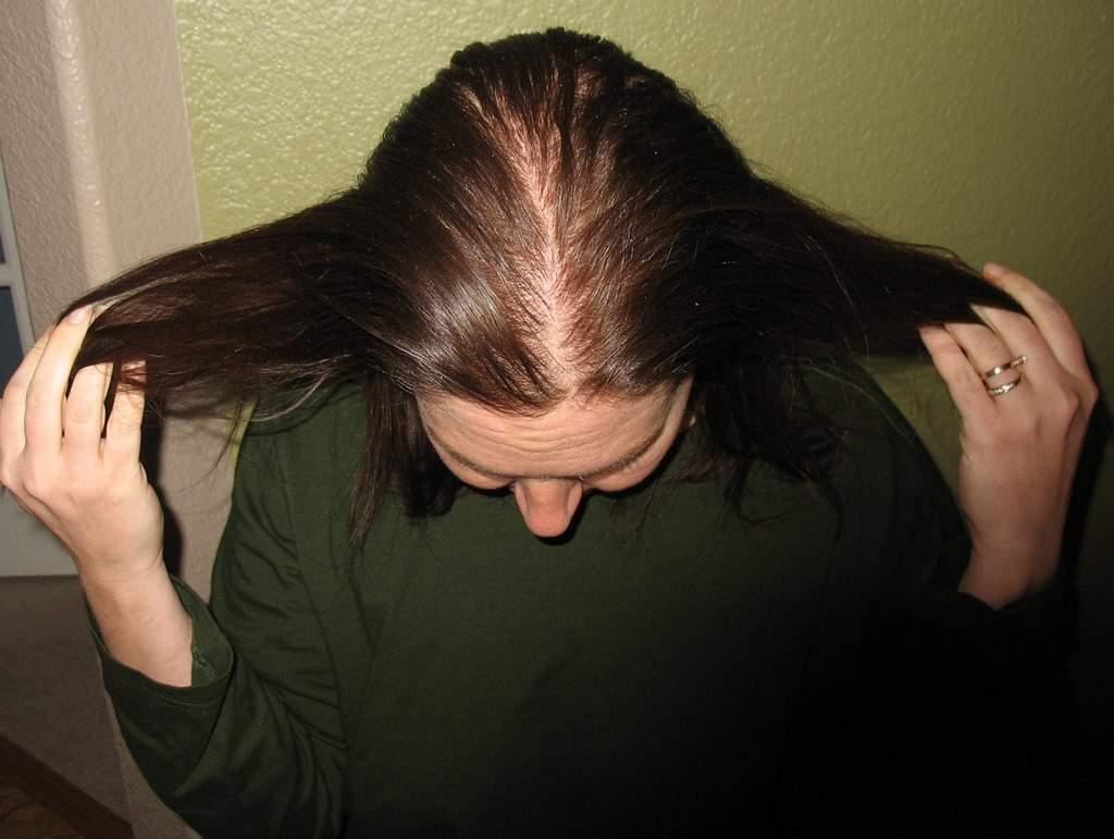 جلوگیری از چرب شدن موها
