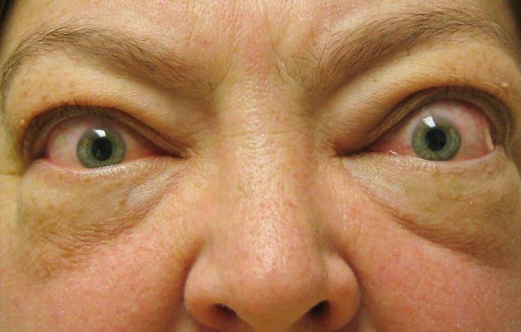 بیماری گریوز: تعریف بیماری، علائم، علل ابتلا، پیشگیری و درمان