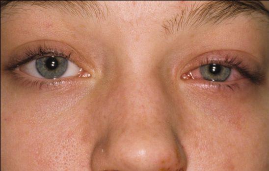 بلفاریت یا التهاب پلک؛ علائم، عوارض و درمانهای دارویی و خانگی