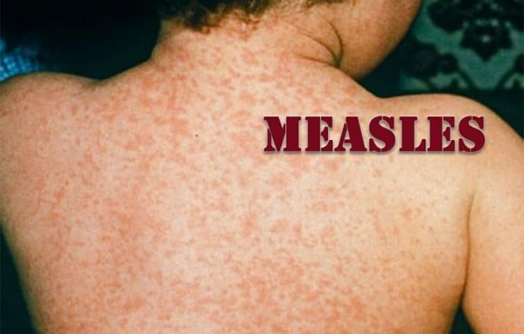 بیماری سرخک و معرفی عامل بیماری، نحوه انتقال، علائم ابتلا و پیشگیری و درمان