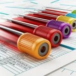 تست RDW در آزمایش خون چیست و نتایج آن چگونه تفسیر میشود؟